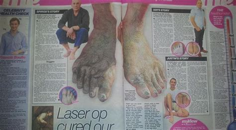 tattoo removal london harley street the harley medical foot and nail laser clinic private