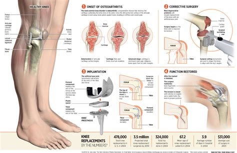 knee surgery knee surgery explica media