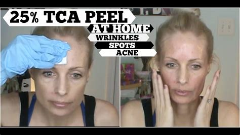 tca peel at home tca 25 sun damage anti aging and