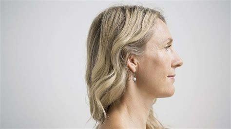 older womens turkey necks common cures for a wrinkled and sagging neck dr ali