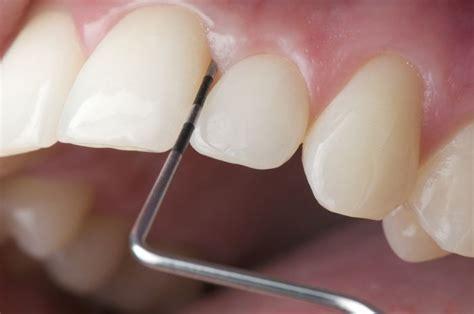 Gum Pockets Home Treatment by Marburg Dentists Periodontal Therapy Pracice Dr Jochum