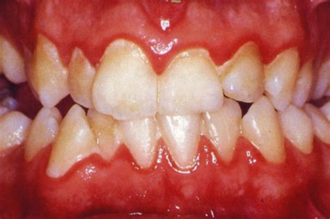 gingivitis treatment laser gum treatment for gingivitis