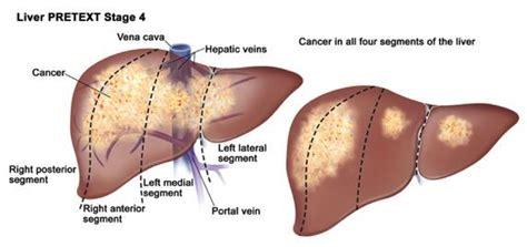 post c section symptoms post c section symptoms post partum hemorrhage pph