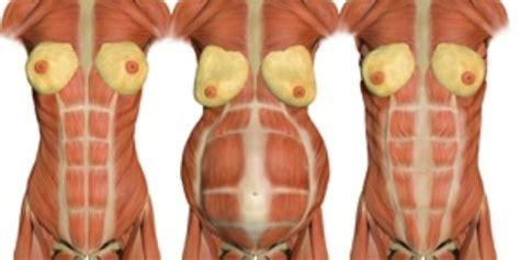 top   diastasis recti exercises ideas  pinterest