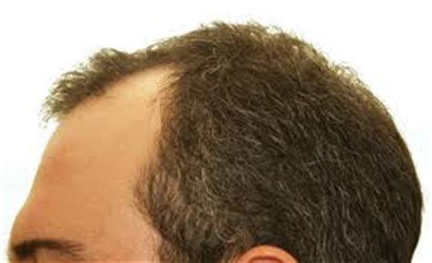 hair losing pigment at temples causes of eyebrow and temple hair loss learn causes