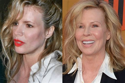 Has Surgery by Has Basinger Had Plastic Surgery Before And After