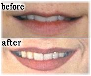 tattoo to make lips bigger lipliner society for permanent cosmetic