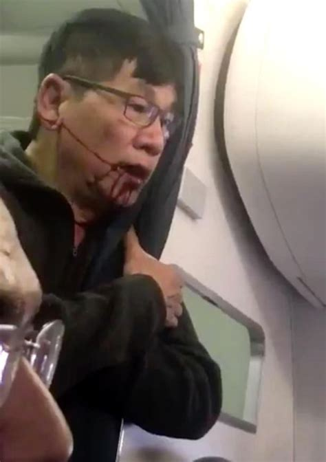 Oscar Munoz United Ceo united airlines overbooked flight incident disturbing