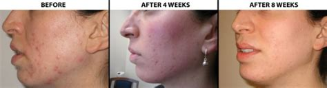 does light therapy work for acne how to use blue light therapy for acne