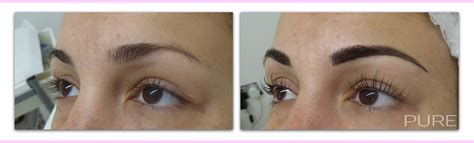 tattoo removal surrey eyebrow removal correction surrey kent