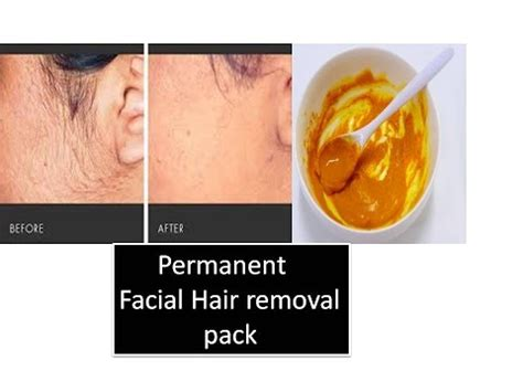 permanent hair removal at home popular asian