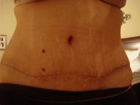 Bio Stretch Marks bio for stretch marks before and after cooking