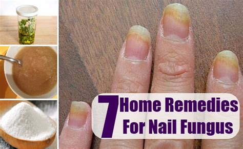 nail fungus home remedies treatments and cures
