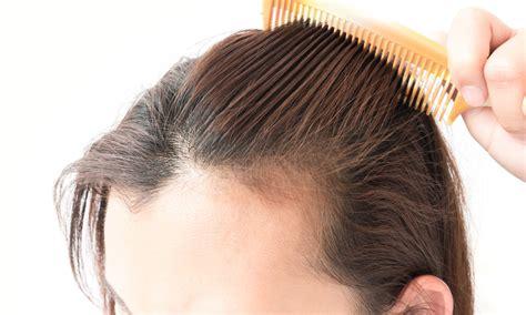 hair loss treatment dermatologist provides hair loss treatment for dermatology east