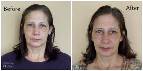 light rx before and after pics for gt hyaluronic acid serum before and after photos