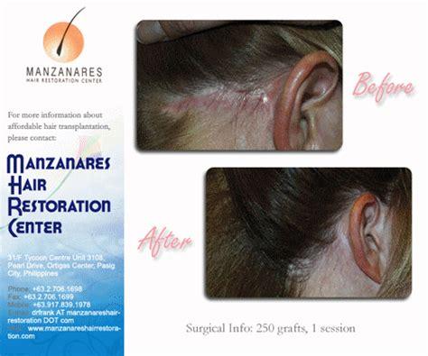 how is loop hair transplant done how is loop hair transplant done how is loop hair