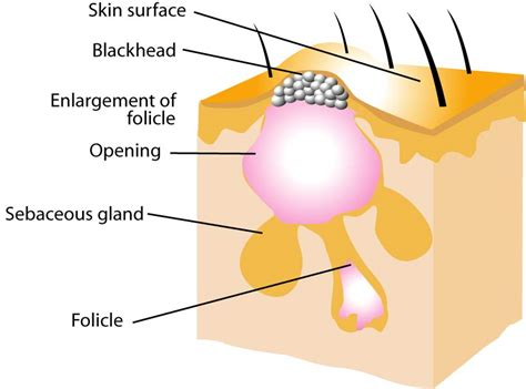 cystic acne diagram all about acne ed the youth ed the youth