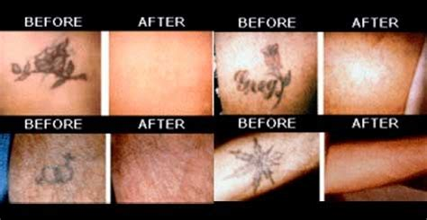 tattoo removal in my area voice daily deals 75 for a tattoo removal for up to a 2