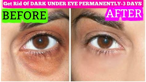 Get Rid Of Eye Circles Right In The Comfort Of Your Own Home by How To Get Rid Of Circles In 3 Days Permanently