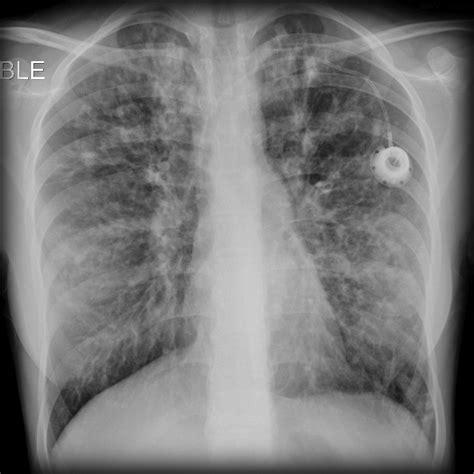 cystic fibrosis image radiopaediaorg