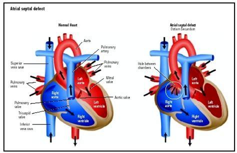 warden procedure diagram timothy oylear dorv vsd bav asd ph