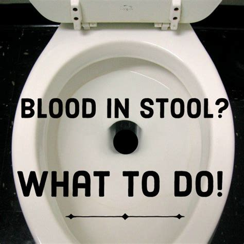 Seeing Blood In Stool by Noticed Blood In Stool Here S What To Do