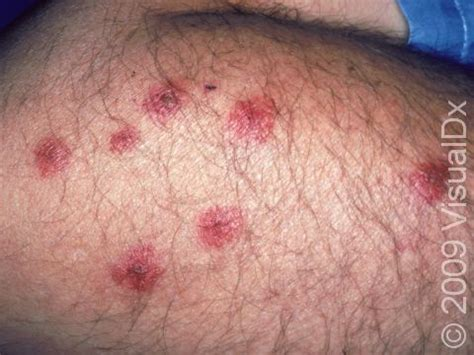 are bed bug bites contagious what bit me skinsight