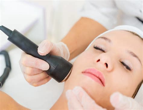 healing process after laser removal the healing process what to expect after removal