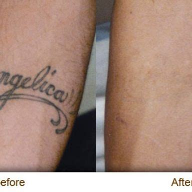 tattoo removal for military tattoos archives military guide