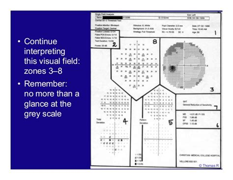 cloverleaf pattern visual field auto perimetry