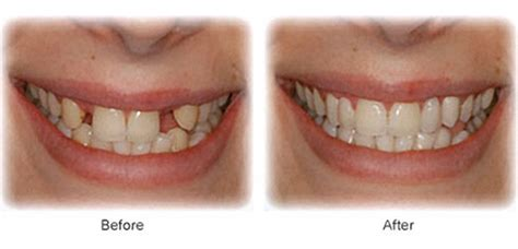 dental bridges in sydenham melbourne my smile dental