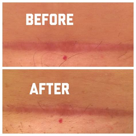 c section scar revision surgery before and after i love scaraway forever 35