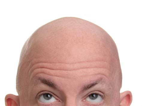 bald head baldness and thinning hair are due to aging dna study