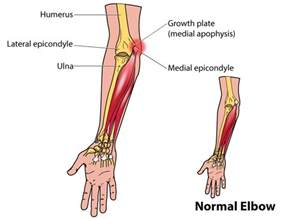 Free Online Cad trigger point therapy the growing problem of quot little