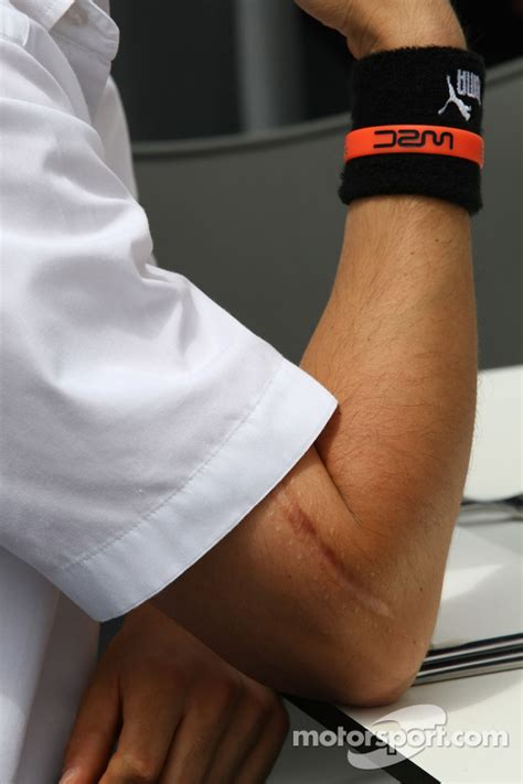 Scar on the arm of Robert Kubica, BMW Sauber F1 Team at