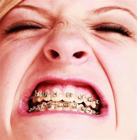 with braces free braces pics