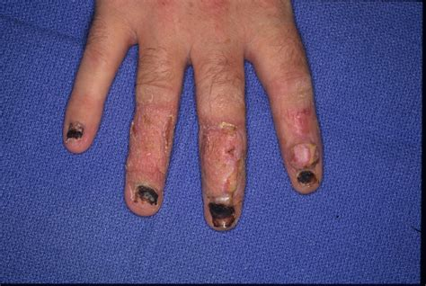 nail bed and fold reconstruction with nail bed