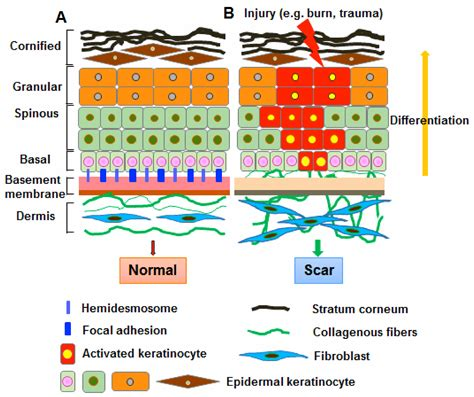 basement membrane of skin abnormalities in the basement membrane structure promote