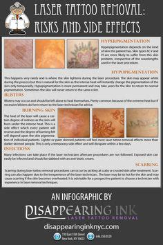 dermasal tattoo removal untattoou laser removal before after 7