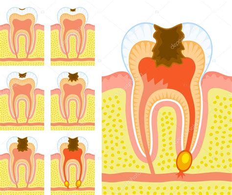 Wie Entstehen Läuse 4153 by Structure Of Tooth Decay And Caries Stock