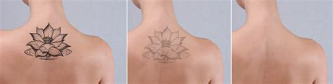 color tattoo removal removal barry lycka md