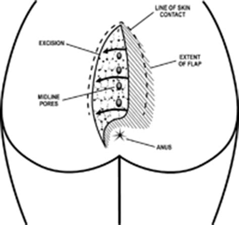 pilonidal cyst location the cleft lift procedure evergreen surgical pilonidal clinic