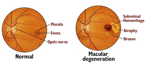 Meaning Of Blindness Age Related Macular Degeneration Johns Hopkins Medicine