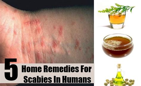 5 best home remedies for scabies in humans