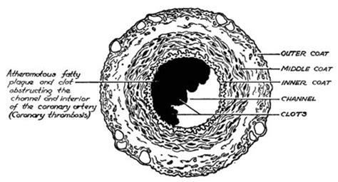 cross sectional views of an artery and of a vein artery cross section diagram labelled human shapes
