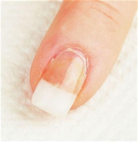 toenail lifting from nail bed image gallery nail lifting