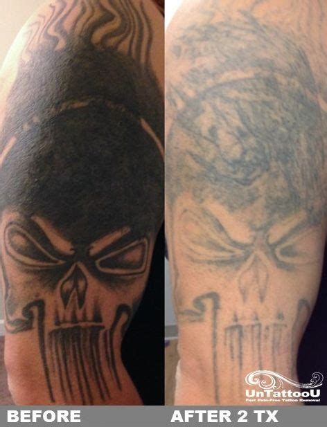 black tattoo removal before and after untattoou laser removal before after 2