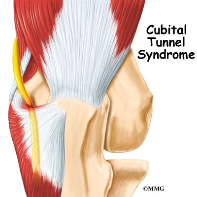 hitting nerve in elbow patient education concord orthopaedics