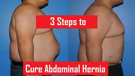how to cure an abdominal hernia cure a umbilical hernia naturally weight loss