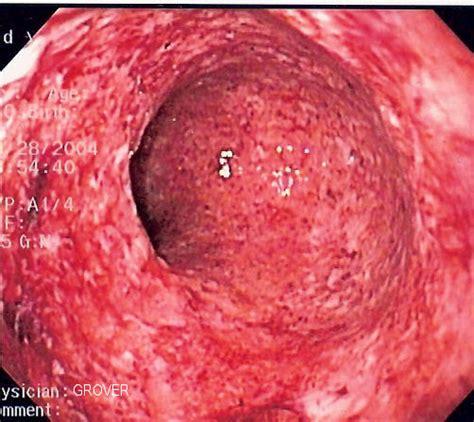 Crohn S Stool by Ulcerative Colitis Causes Symptoms Treatment Ulcerative